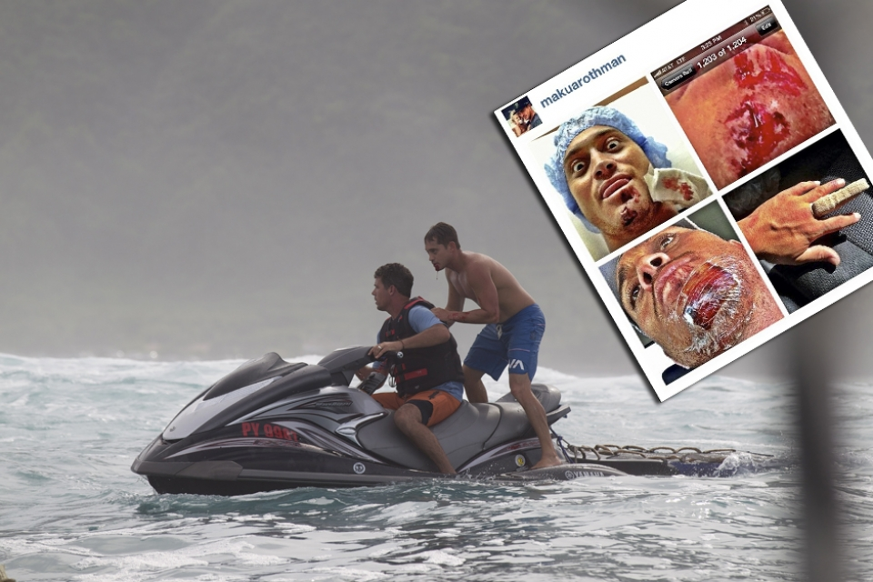 Makua Rothman being rescued off the reef. He suffered in his words: