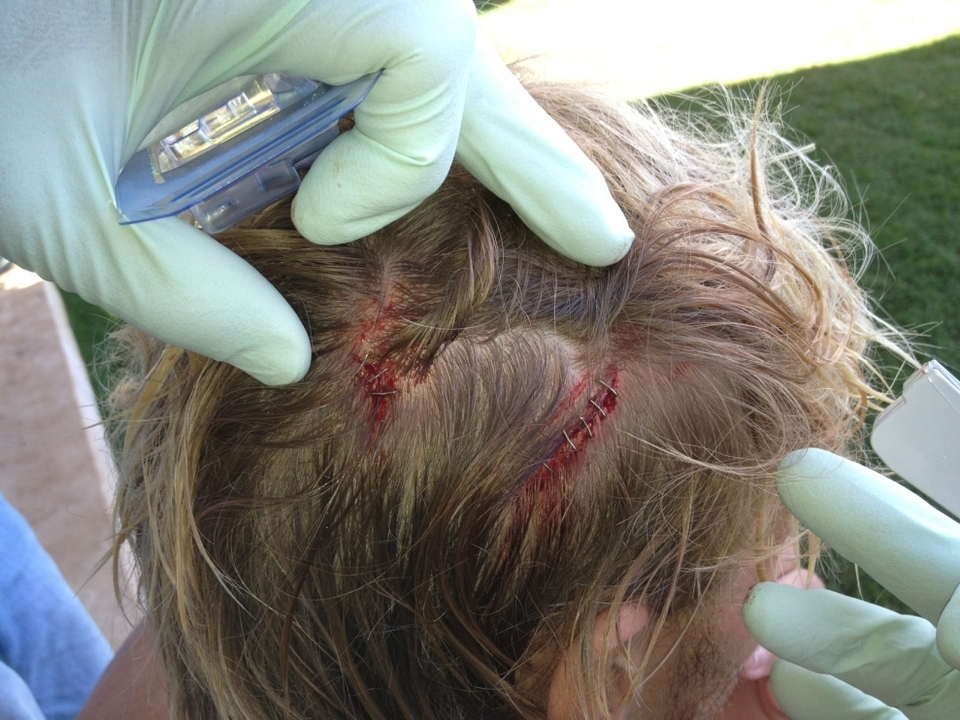 San Clemente's Tanner Gudauskas had a lucky escape and advanced, but not without needing eight staples to his skull. Tanner sustained a massive wipeout on his opening ride that pinned him to the reef, lacerating his arm, back and head. He eventually managed to shake off the nerves and try again, taking some of older brother Dane's advice onboard.