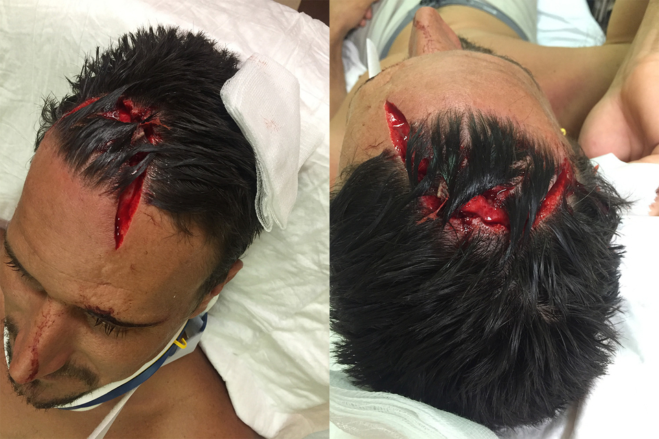 This is the result of a copping a four to five foot wave straight onto the reef. Gruesome? Maybe. But a reminder that accidents can happen even in the small stuff.