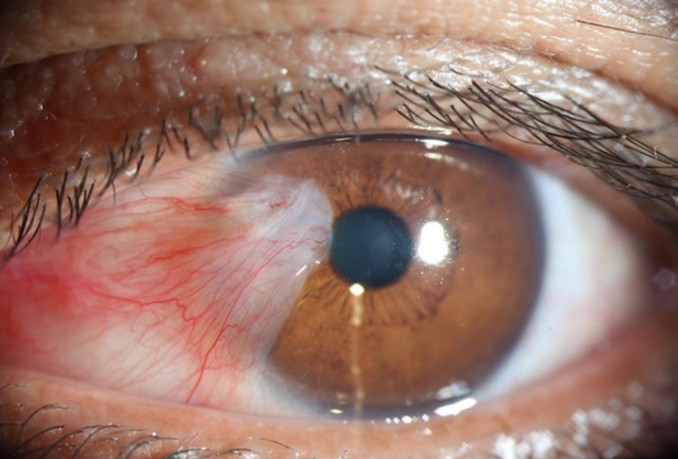 The 'Wing' of abnormal conjunctiva growing towards the pupil. The brown stain is often iron deposits.