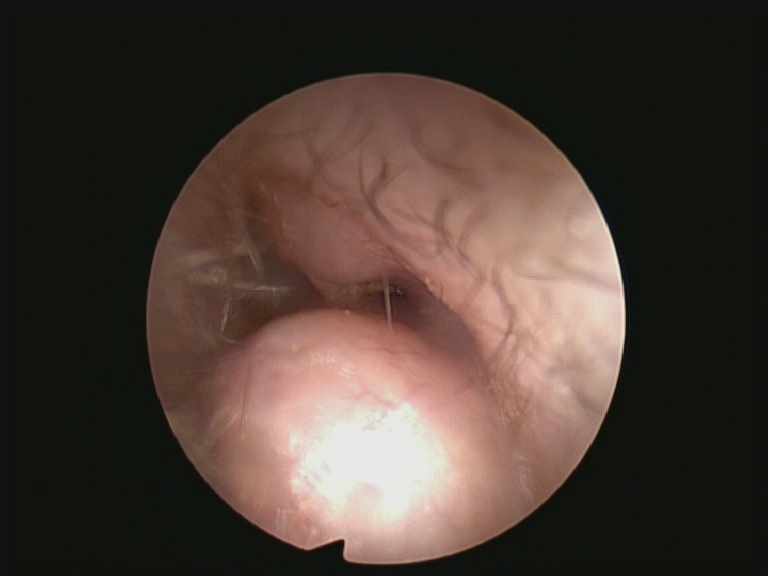 Photo of a surfer's right ear showing significant narrowing caused by new bone growth (exostosis ). They had been suffering from recurrent ear infections in this ear. A year previously they had their left ear exostosis successfully removed.
